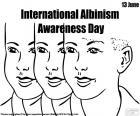Dia internacional de sensibilização ao albinismo